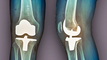 CMS wants to extend joint replacement model by 3 years