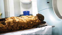 A CT scanner at Leeds General Infirmary with the mummy.