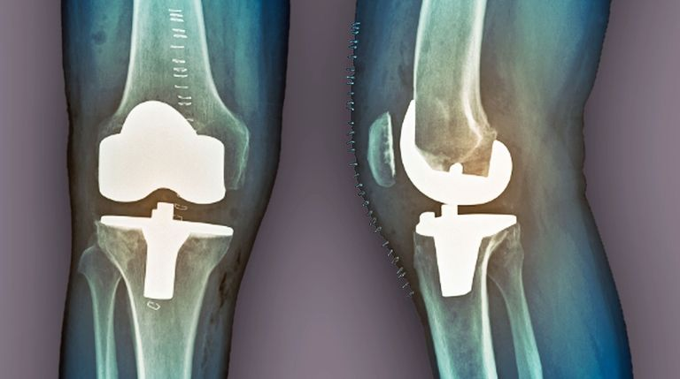 Joint replacement patients willing to pay more for higher star rating, study says