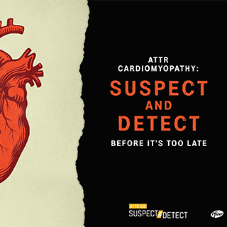 ATTR-CM: Suspect and Detect